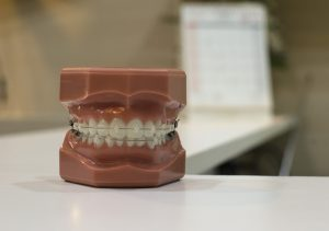 Teeth model for dental implants